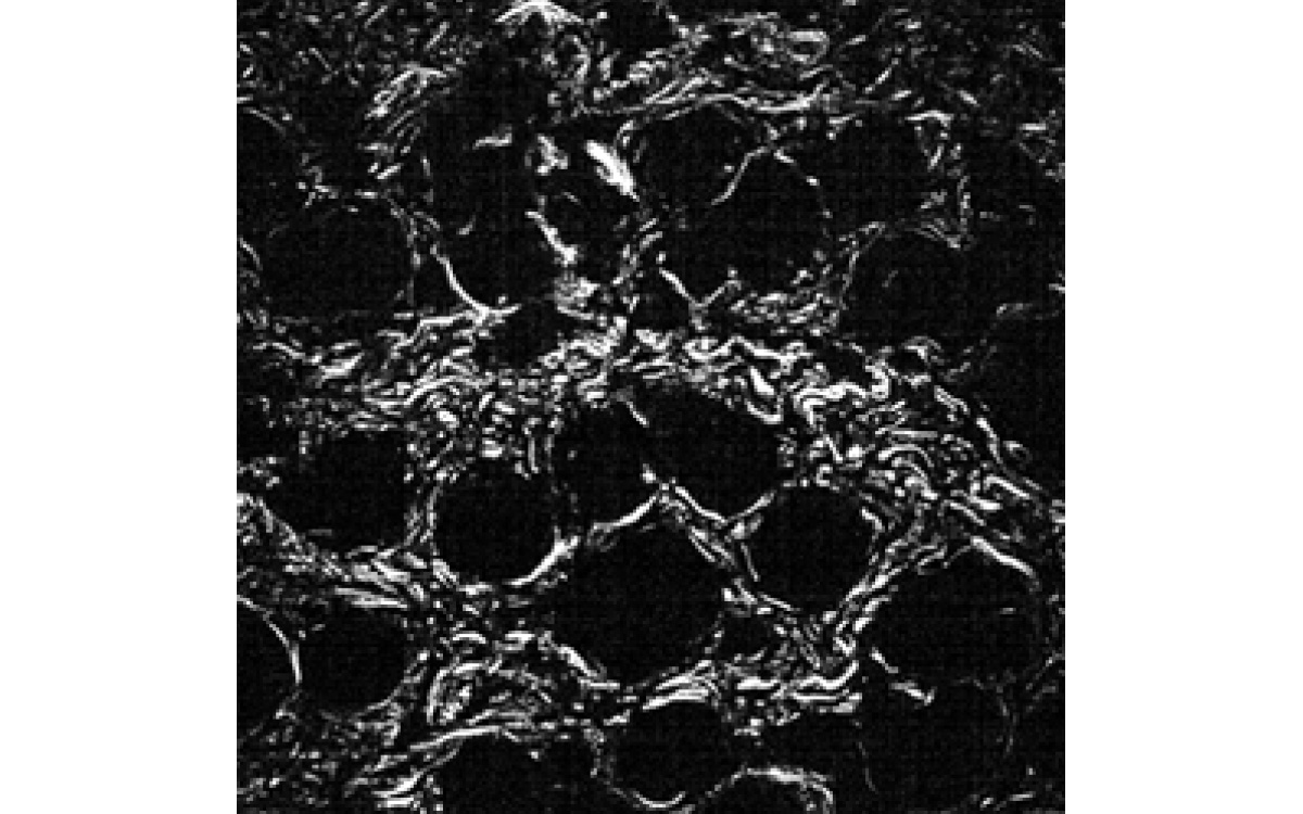 SHG image of colagen structures of 450×450 μm² area of a mouse skin sample captured with FemtoLux 3 laser. The integration time was 0.1 s