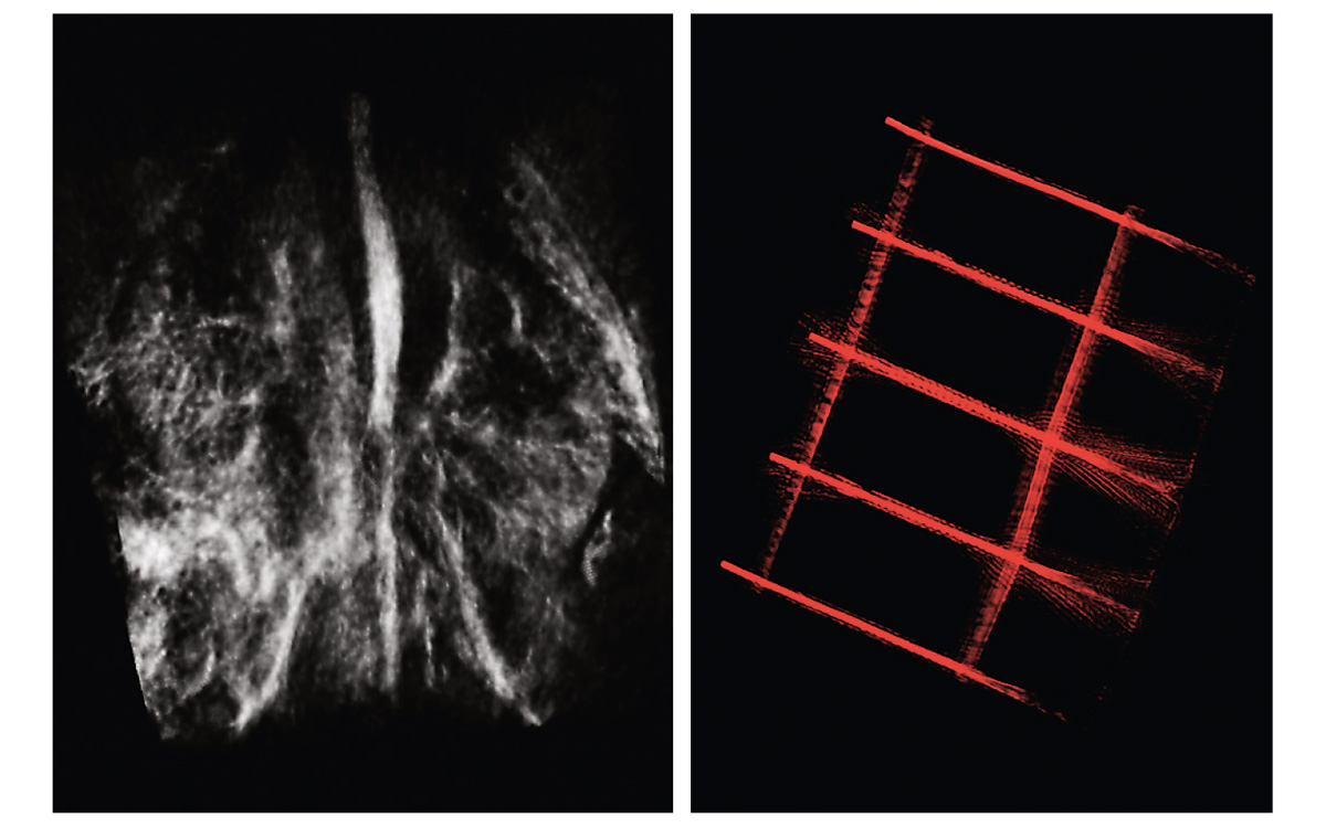 Samples of photoacoustic images. <i>Courtesy of PhotoSound Technologies, Inc.</i>